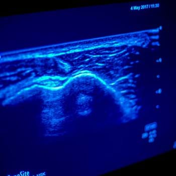 Ultrasound short courses