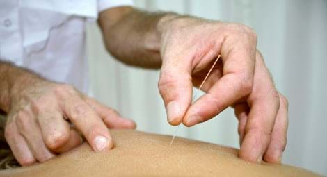 Introduction to Dry Needling October 2019 - CPD