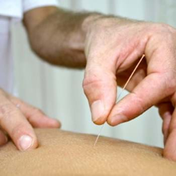 Introduction to Dry Needling. - CPD